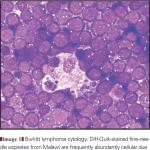 burkitts lymphoma slide